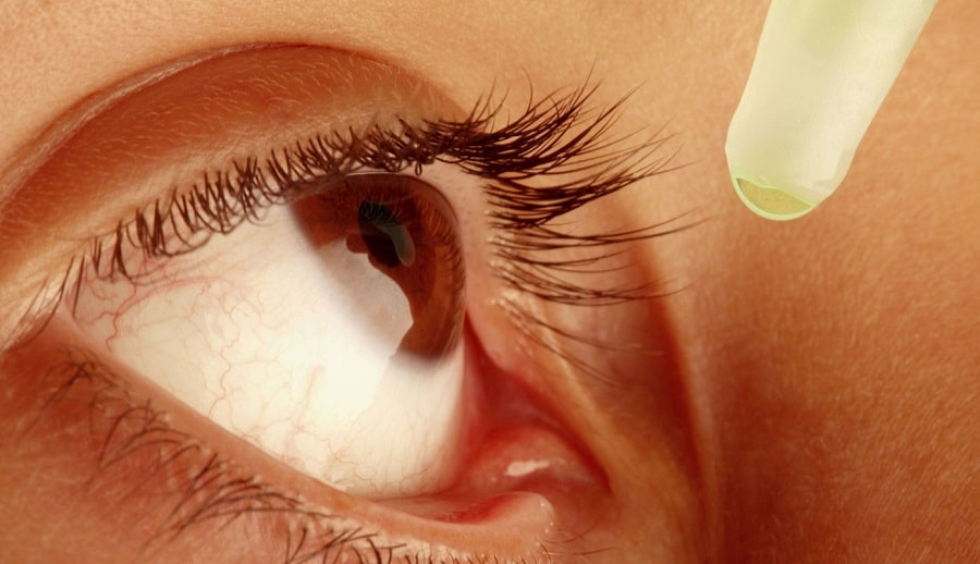 First Aid for Eye Problems