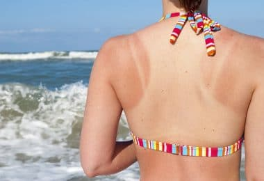 Home remedies sunburns