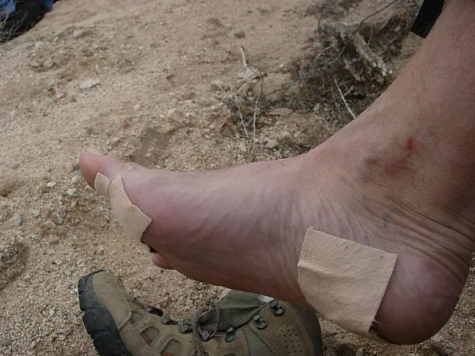 bandaids on blisters