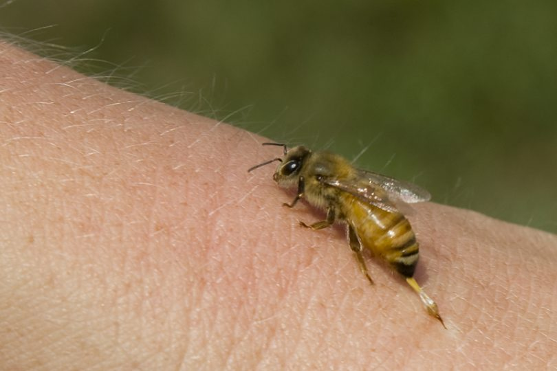 bee stinging a person